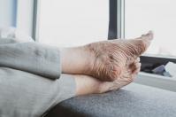 Co może być przyczyną ociężałości nóg?